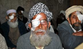 Cataract Surgery in Muzaffarabad: Munawwar Din